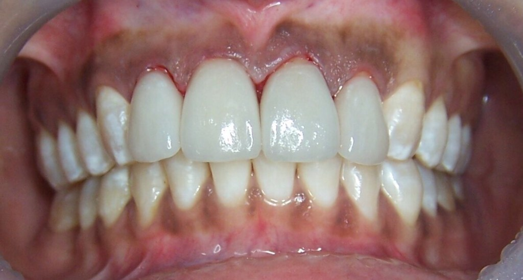 Porcelain veneers were used to mask this colour and give a beautiful new smile on the 4 front teeth.