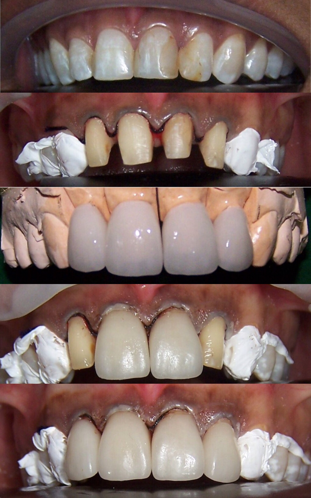 The bond between original tooth and porcelain veneer is critical as it not only provides the esthetic perfection desired, but also a strong bond which is essential for correct veneer function.