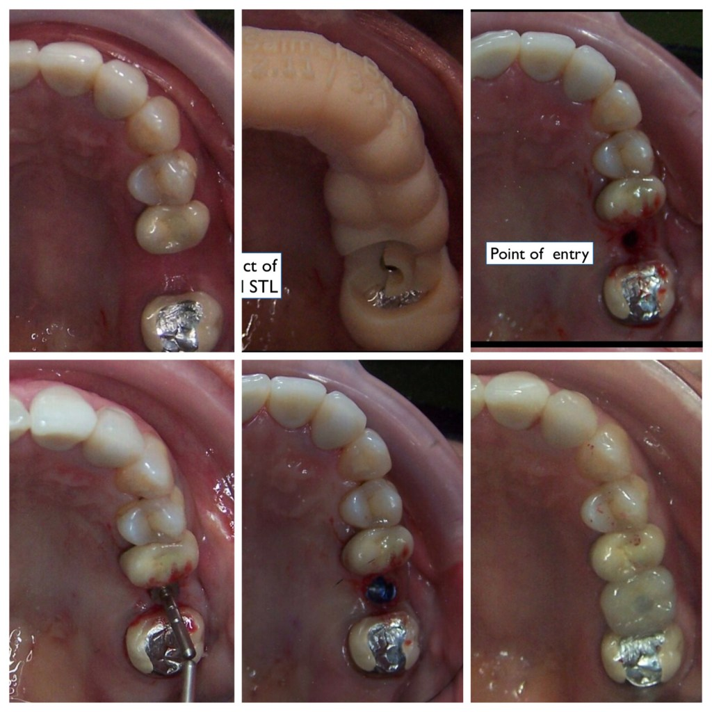 Direct comparison of guided and freehand implant placement confirms that patients experience less post-operative discomfort after the guided procedure.