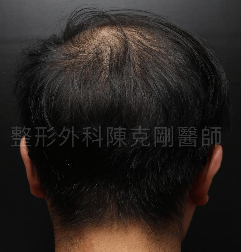 頭頂稀疏植髮一年後腦.png