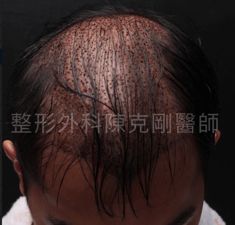頭頂稀疏植髮立即術後.png