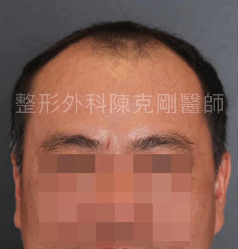 中年植髮術前.png