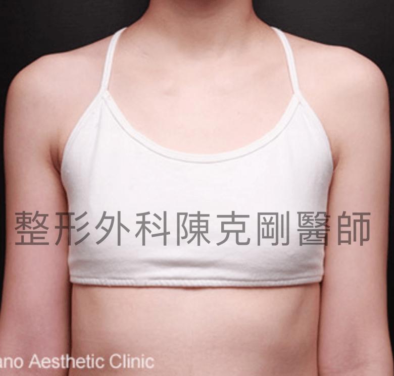 內視鏡隆乳術前.png