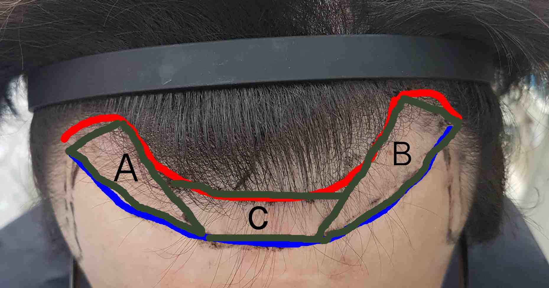 如何測量植髮的種植面積