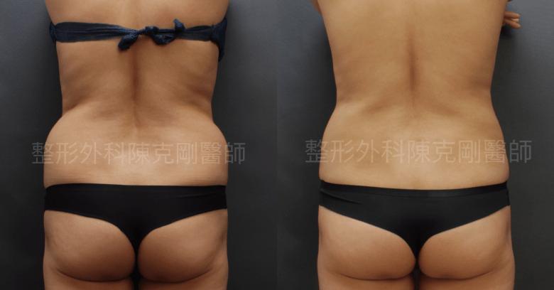 腰部抽脂背後比較