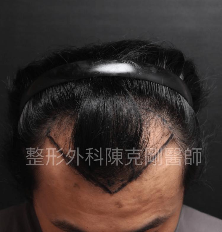 防止植髮失敗 低頭畫線