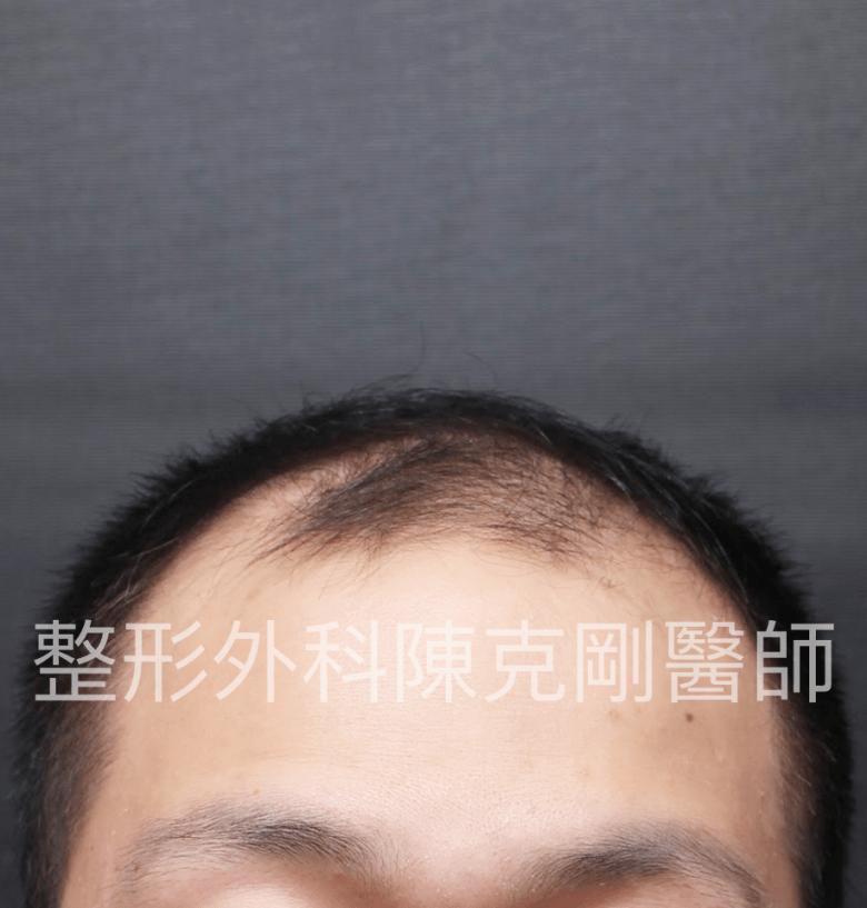 2600朱正面術前.png