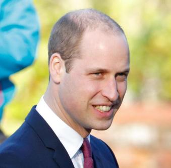 威廉王子禿頭.png