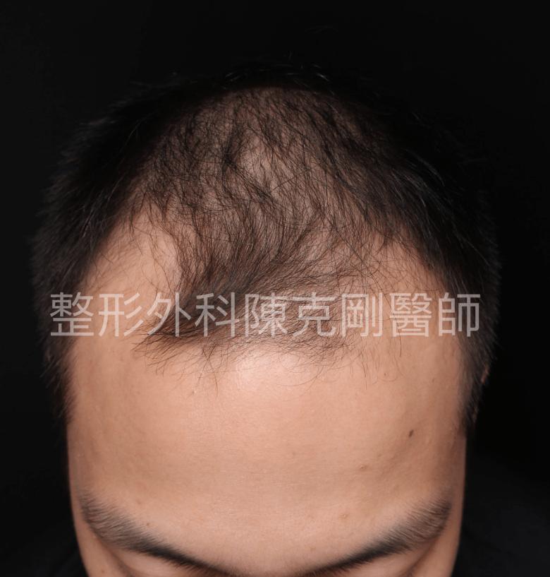 植髮術前低頭.png