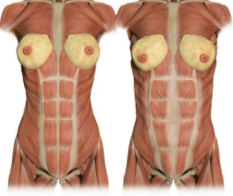 產後腹部緊實的方法:腹部拉皮手術