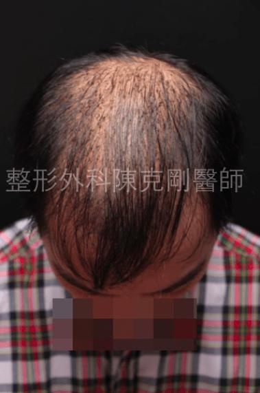 植髮頭頂稀疏1500株一個月.png