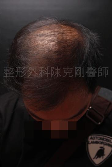 植髮頭頂稀疏1500株三個月.png