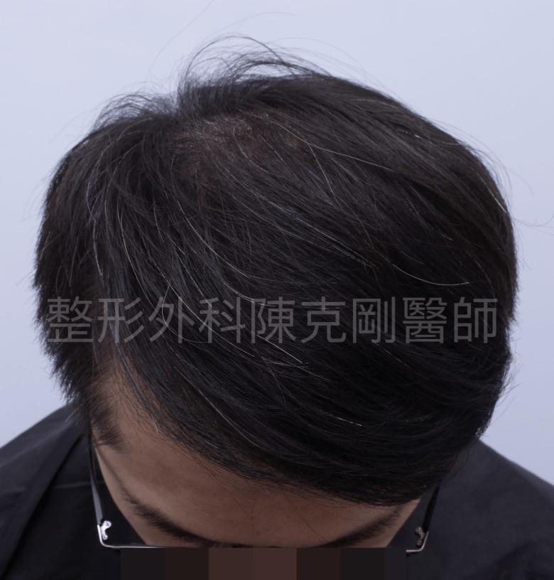 植髮頭頂稀疏術後低頭.png