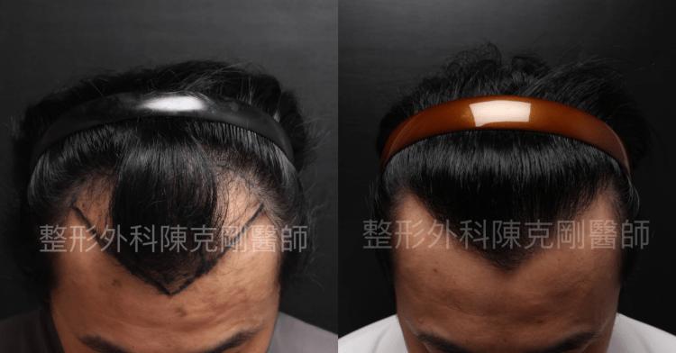 防止植髮失敗 低頭術前術後