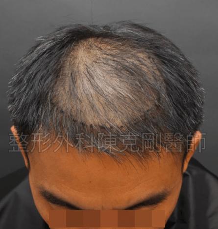 植髮頭頂低頭畫線.png