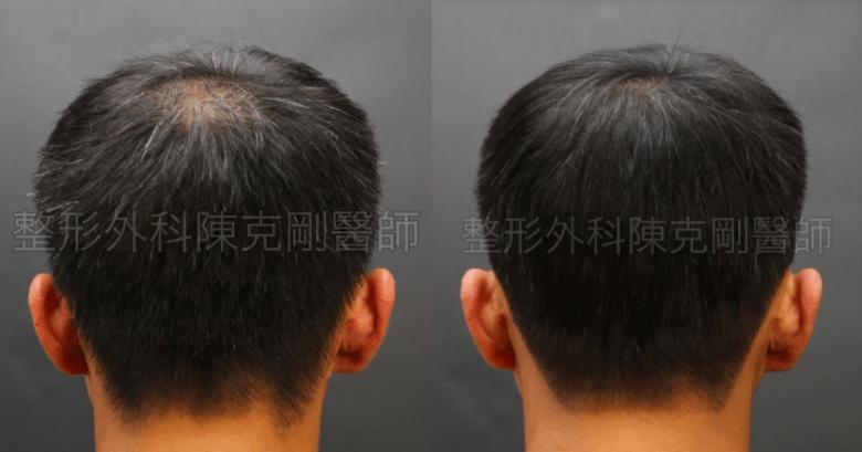 植髮頭頂背面比較.png