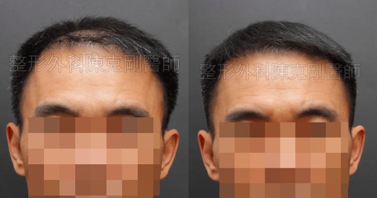 植髮頭頂術前正面比較.png
