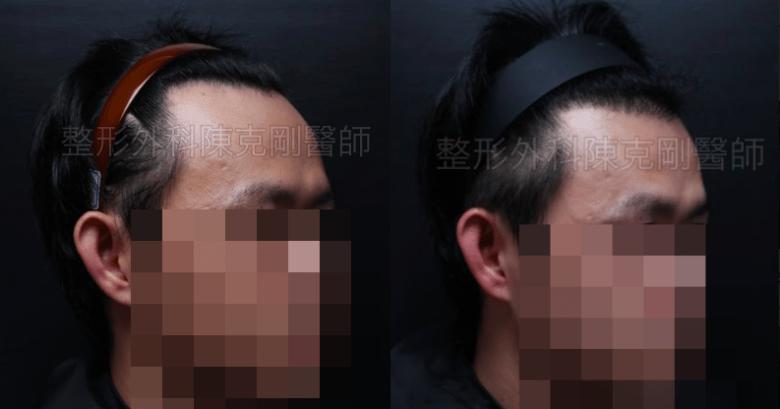 植髮髮線推前右45度比較