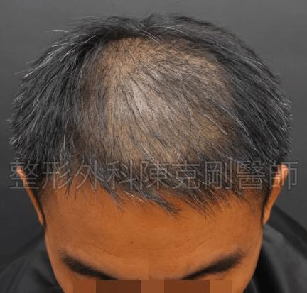 頭頂植髮術前低頭.png