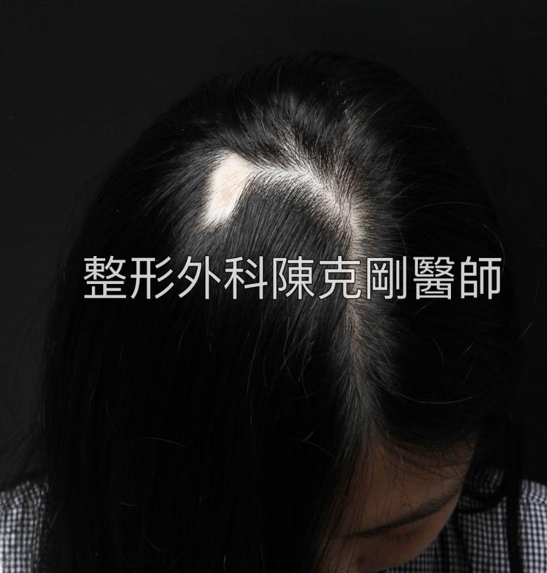 疤痕植髮術前