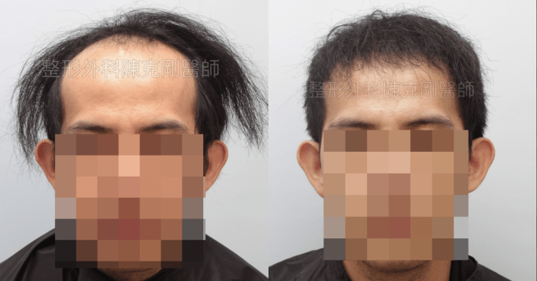 前額植髮 術前正面比較-side.png