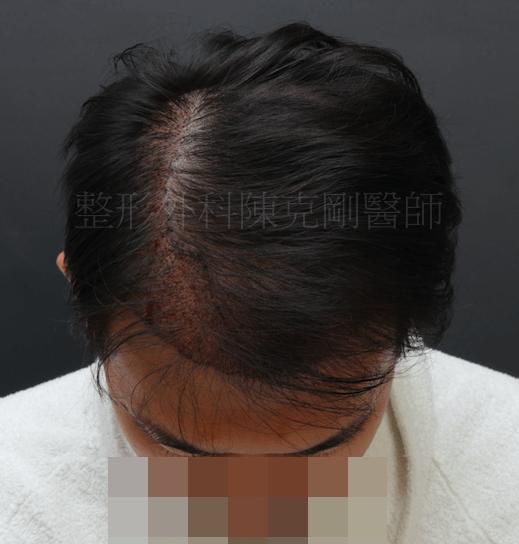 植髮效果 低頭術後立即