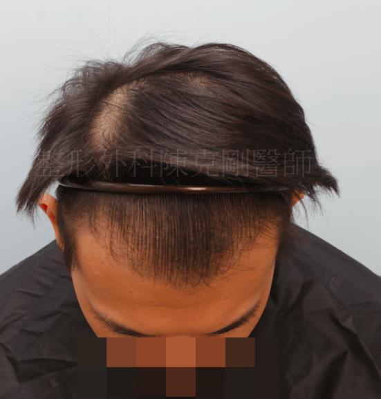 植髮效果 低頭髮線