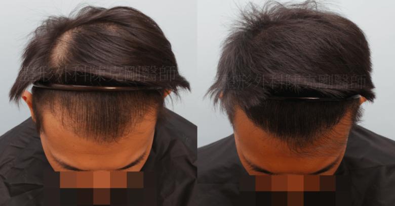 植髮效果 低頭髮線比較