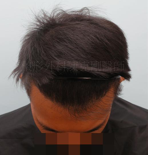 植髮效果 術後低頭九月