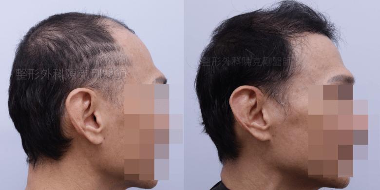 前額植髮 側面比較