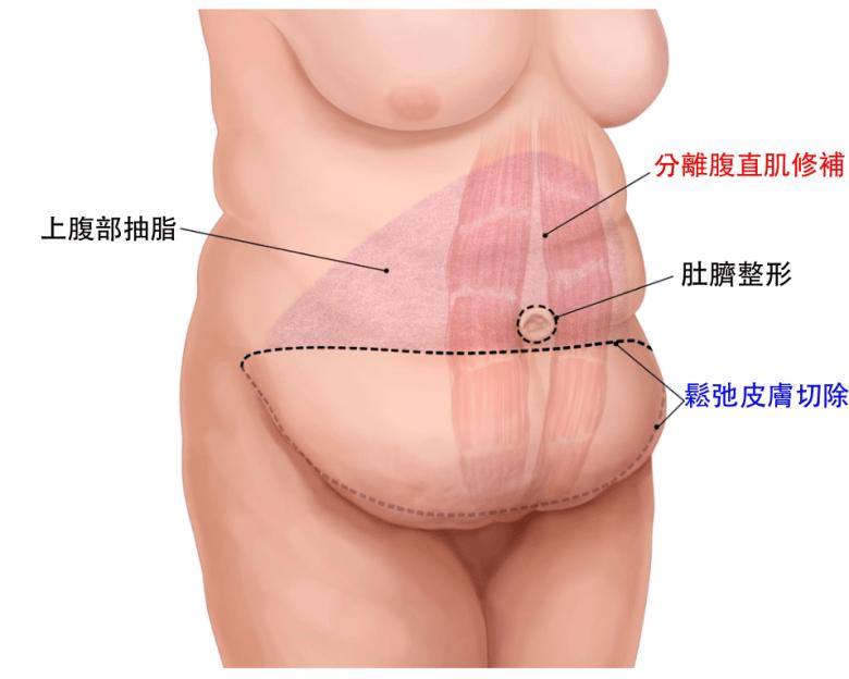 腹部拉皮手術原理示意圖