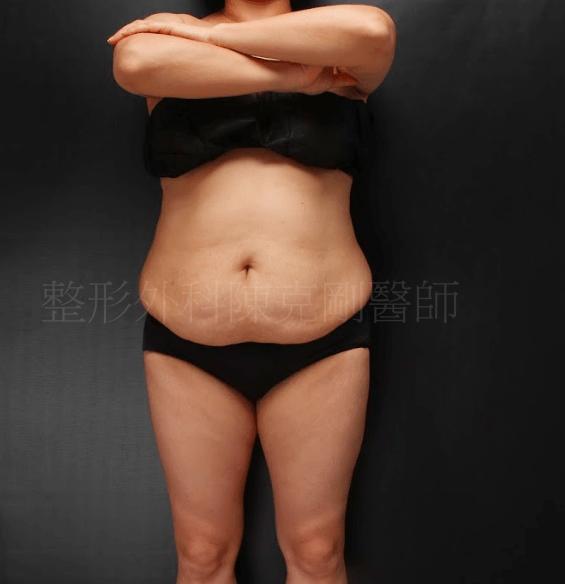 腹部拉皮正面術前
