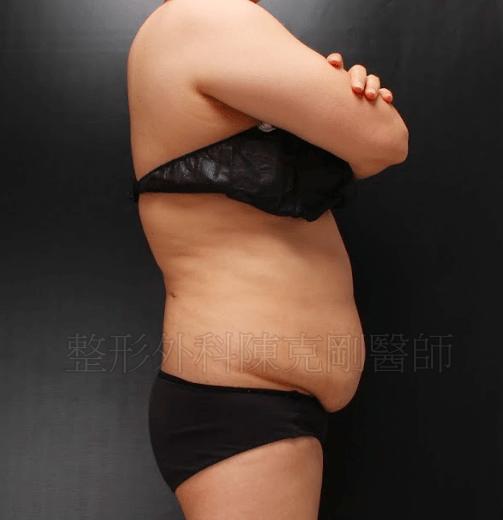 腹部拉皮術前側面