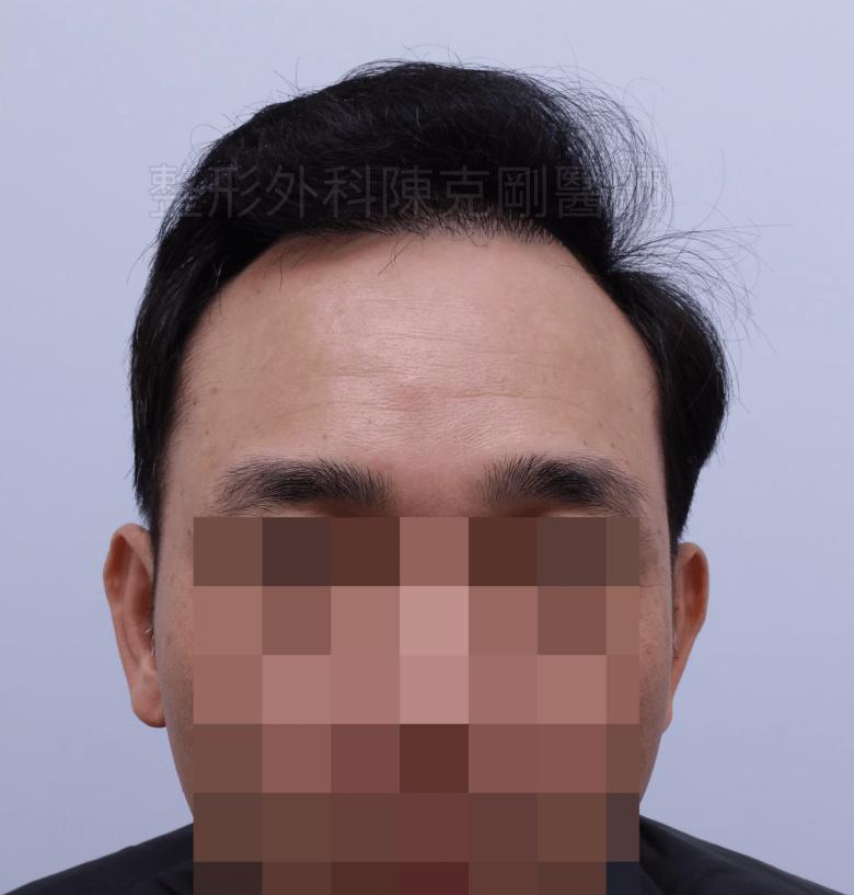 前額髮旋植髮術後一年