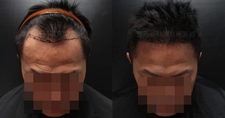 M型禿植髮正面低頭對比