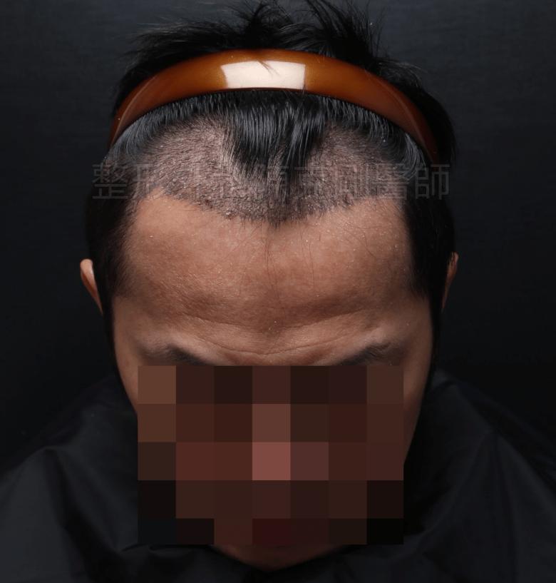 M型禿植髮低頭術後三週.png