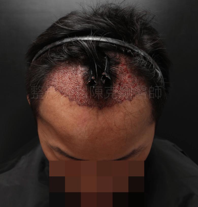 M型禿植髮低頭立即術後.png