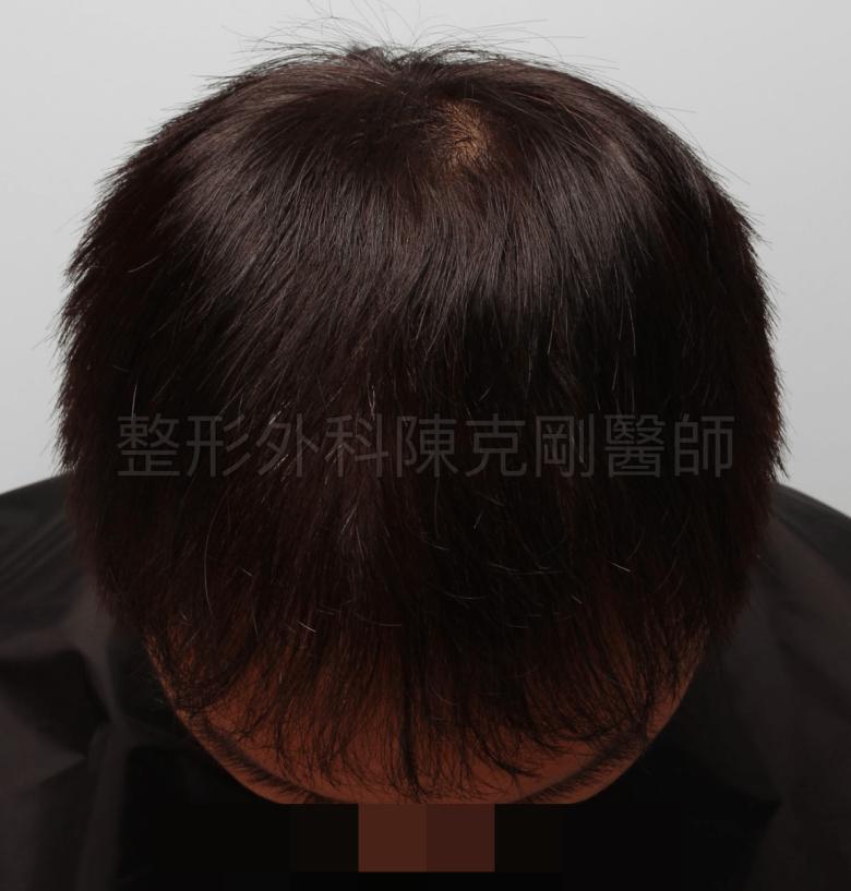 前額M型植髮術後一年低頭