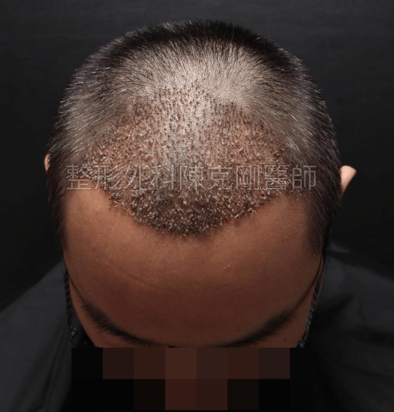 前額M型植髮術後三週