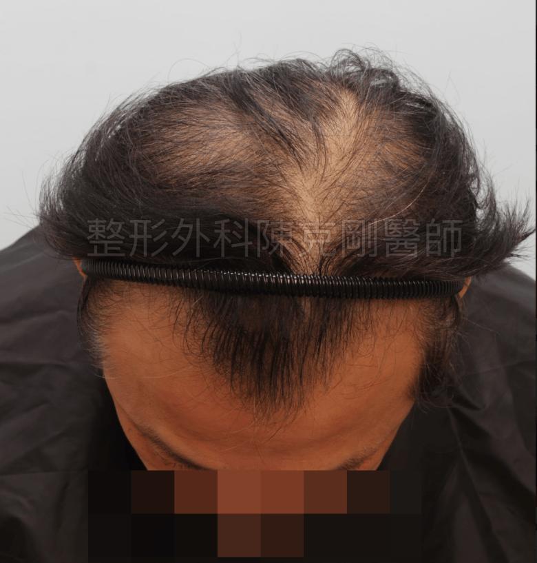 植髮術前 落髮期