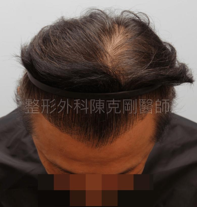 植髮術後一年 落髮期