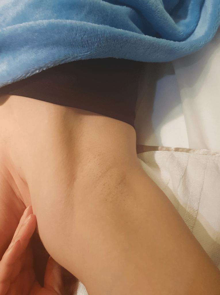 內視鏡腋下隆乳疤痕右側