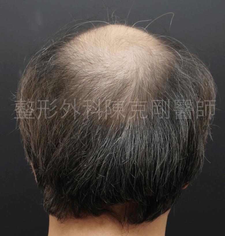 禿頭植髮後腦術前