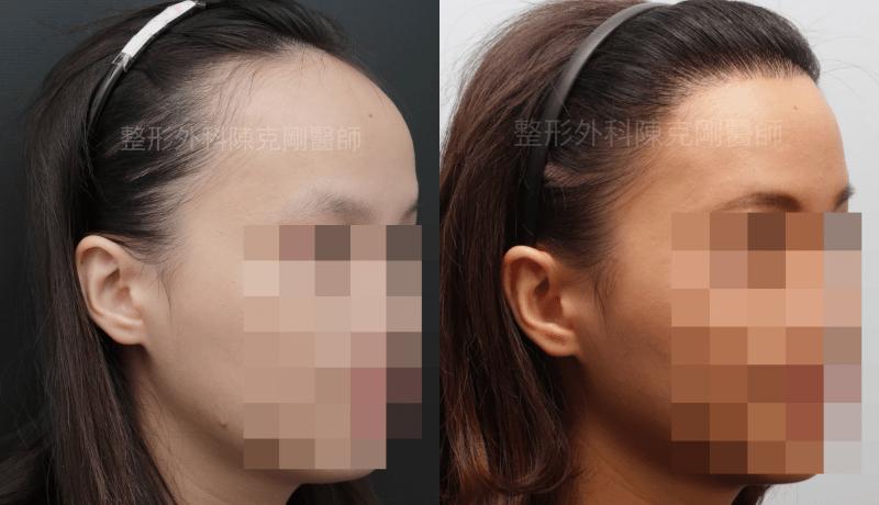 女性髮際線植髮右側45度比較