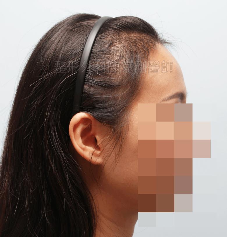 女性植髮側面術後三個半月