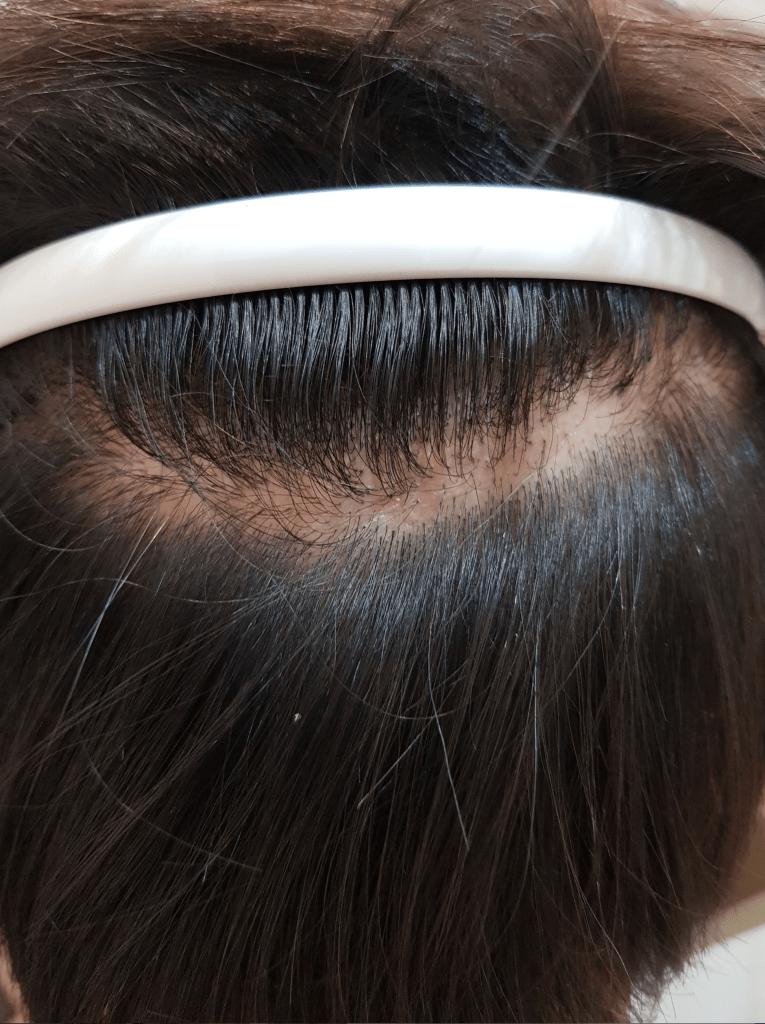 女性髮際線植髮FUT疤痕