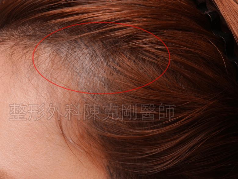 女性 髮際線紋髮 變藍色