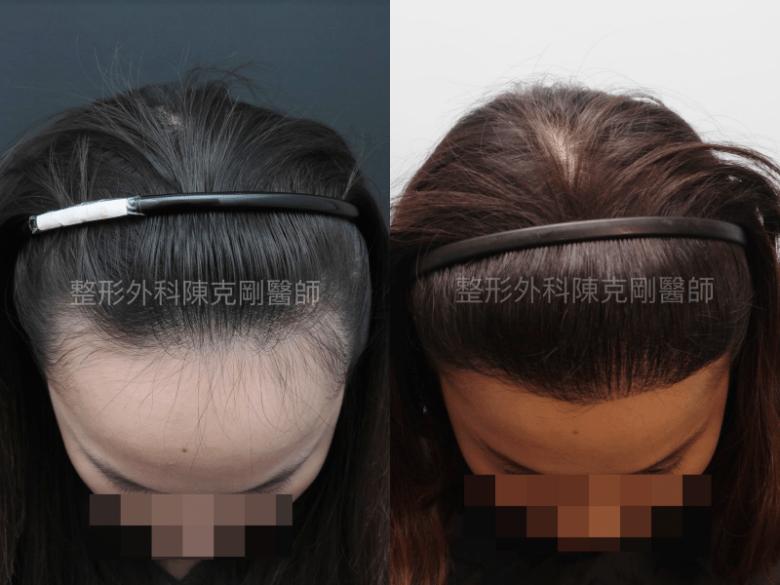 女性髮際線植髮低頭比較