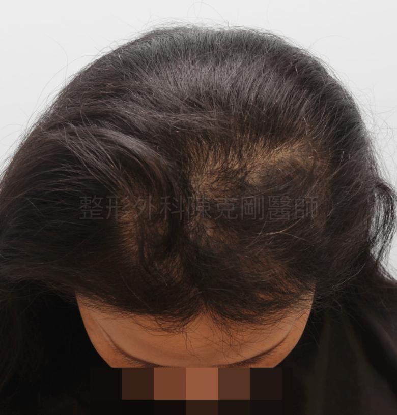放射線治療後落髮 植髮半年術後 低頭