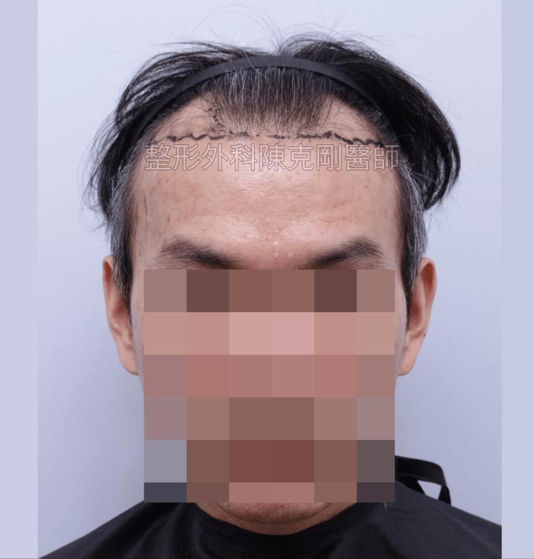 白髮植髮術前正面畫線